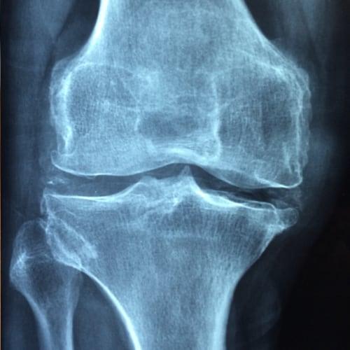 Orthopedische en Sportrevalidatie